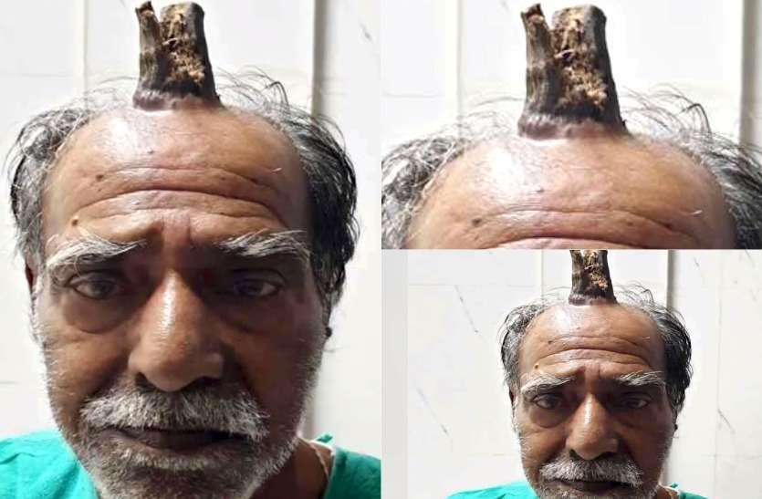Image result for भोपाल सिर पर हॉर्न