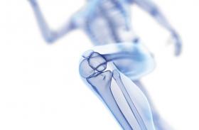 Bone health, Diet and Exercise: वर्कआउट के दाैरान कम कैलाेरी डाइट करेगी ये नुकसान