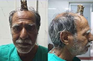 74 साल के इस शख्स के सिर पर जानवरों की तरह निकल आई सींग, डॉक्टर भी हैरान