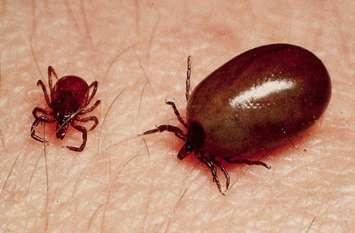 Scrub Typhus: उत्तराखंड और हिमाचल के बाद यूपी में फैली यह जानलेवा बीमारी, जानिए क्या हैं लक्षण और बचाव