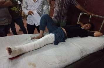 जुए के खिलाफ कार्रवाई, पुलिस ने मारा छापा तो बचने के लिए छत से कूदे,दो घायल चढा प्लास्टर