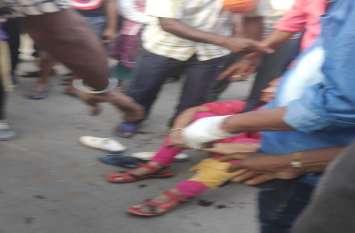 मनचले युवकों ने दो महिलाओं के तोड़ दिए पैर, एक के सिर पर आई गंभीर चोट आईसीयू पहुंची महिला