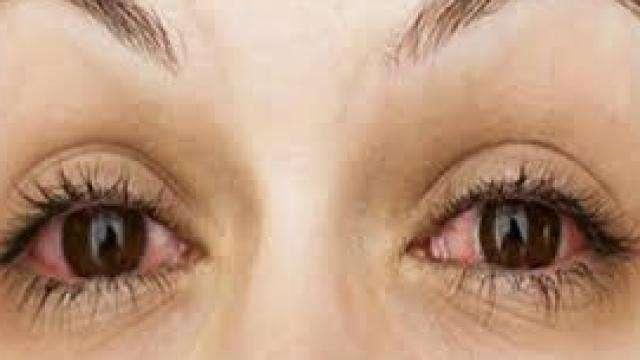 eyes_infection_1535362847.jpg