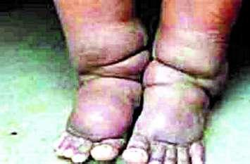 सरकारी प्रयास के बाद भी जिले में मिले फाइलेरिया के 448 मरीज
