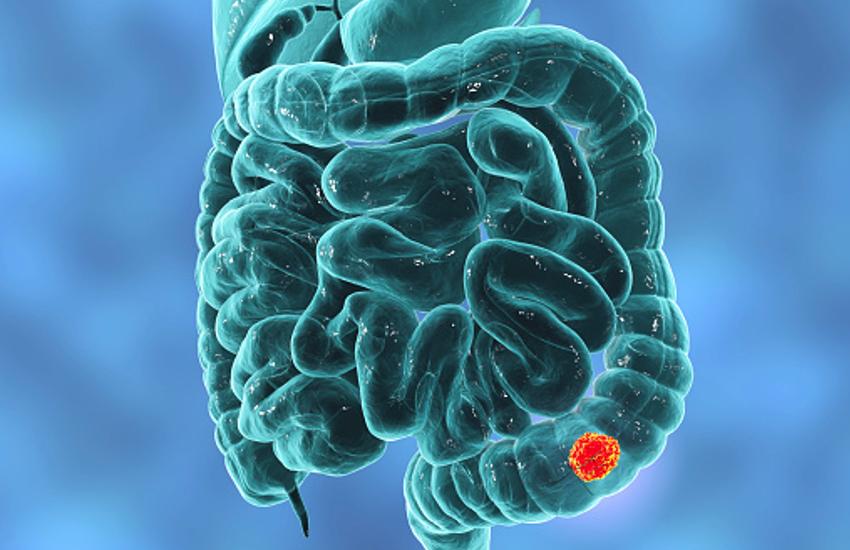 Colon Cancer Treatment Bowel Cancer Screening Effective In Treatment Colon Cancer Treatment À¤ª À¤° À¤¡ À¤¯à¤— À¤¨ À¤¸ À¤Ÿ À¤• À¤• À¤² À¤¨ À¤¸ À¤• À¤ª À¤¸ À¤¸ À¤à¤µ À¤¹ À¤‰à¤ªà¤š À¤° Patrika News