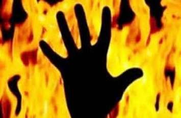 कॉलेज में छात्रा ने खुद को लगाई आग, हालत गंभीर