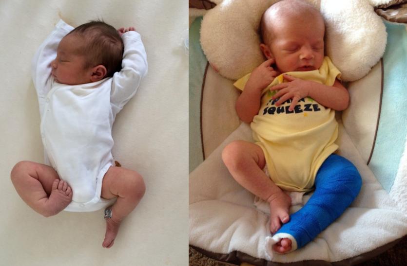 क्लबफुट की समस्या में जन्म से ही शिशु के पैर के पंजे मुड़े होते हैं, जानें इसके बारे में