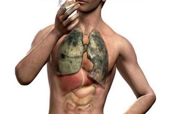 फेफड़ों के अलावा अन्य अंगों में भी हो सकती है टीबी