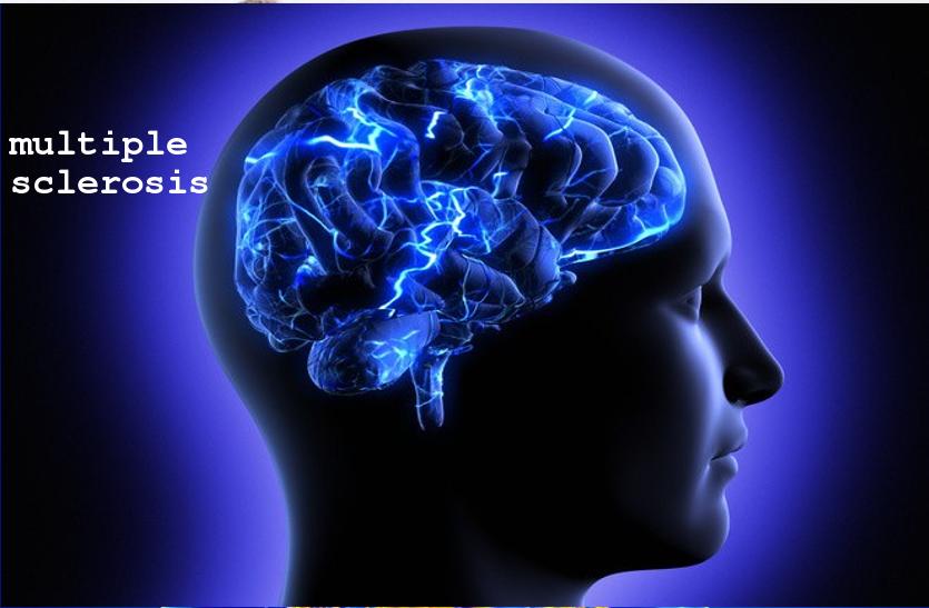 दिमाग में इंफेक्शन होता है जानलेवा, जानें मल्टीपल स्क्लेरोसिस के बारे में