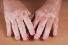 Vitiligo Treatment: सफेद दाग मिटाने में कारगर है होम्योपैथी