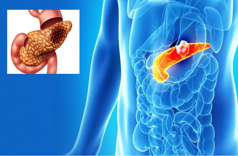 Pancreatic Cancer: Symptoms And Causes - पहली स्टेज में लक्षण नहीं दिखने से  साइलेंट किलर है पेंक्रियाज कैंसर   Patrika News