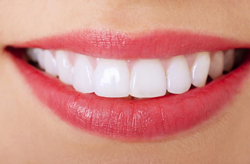 Clean And Shiny Teeth :- दांतों को साफ और चमकदार बनाने अपनाएं यह तरीके..