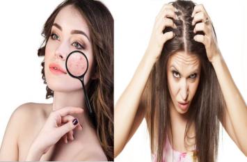जानिए रूखी त्वचा, मुंहासों, झाइयों, झड़ते बालों और डैंड्रफ के लिए उपचार