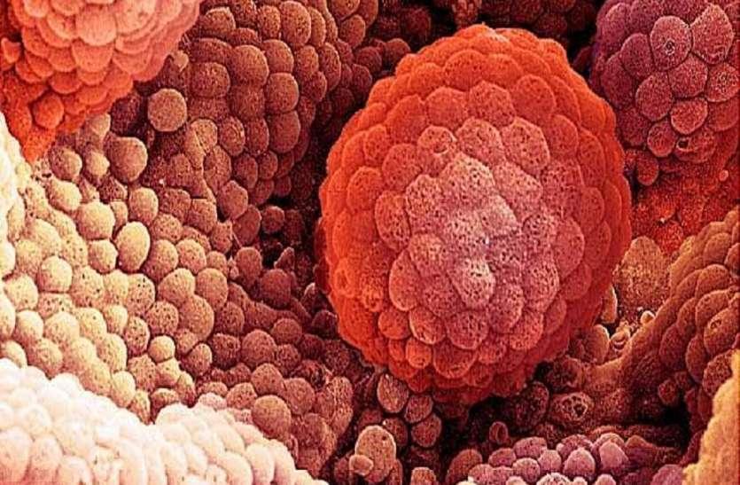 इन लक्षणों को भूलकर भी न करें इग्नोर, हो सकता है मेटास्टैटिक कैंसर