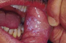 मुंह में हुए सफेद पैच को न समझे कैंसर