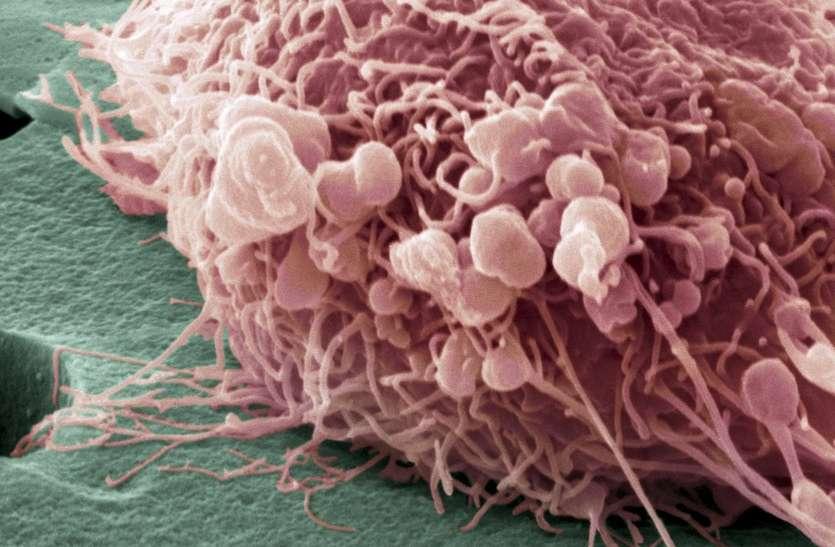 25 से 30 साल की महिलाओं को हो रहा है 'ब्रेस्ट कैंसर', जानिए इससे बचने के 3 जरूरी उपाय
