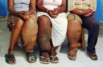 महाराष्ट्र में Polio की तर्ज पर इस तरह होगा Hathi रोग का निवारण ?