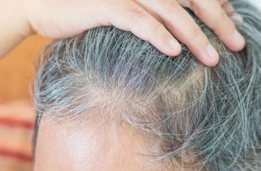 जानिए क्यों बिना उम्र के सफेद हो जाते हैं बाल, ये हैं सफेद होने से बचाने के उपाय