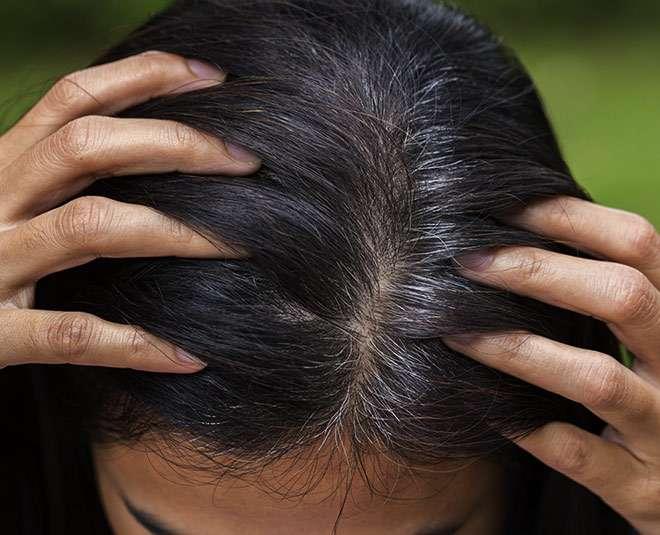 white-hair-problem-in-women.jpg