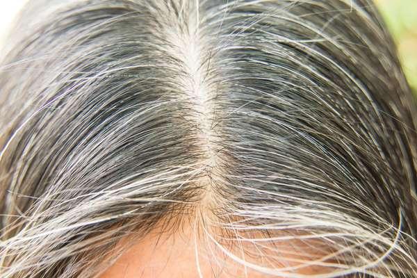 white-hair-problem.jpg