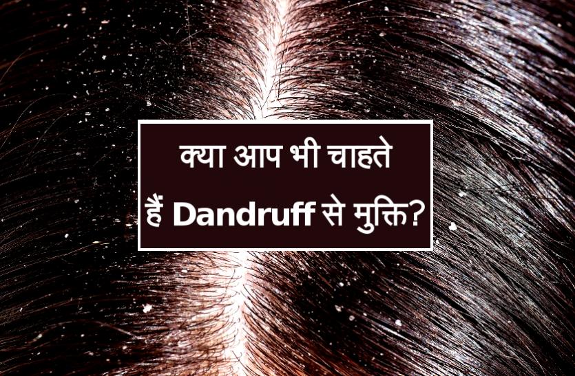 क्या आप भी चाहते हैं सर्दियों में Dandruff से मुक्ति? तो आजमाएं ये घरेलू Tips
