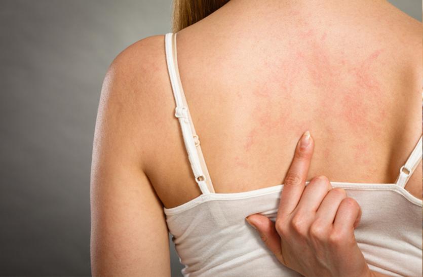 Effective Home Remedies For Skin Itching - सर्दी में खुजली की समस्या ज्यादा  होती है, जानें इससे बचने के तरीके | Patrika News
