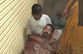 निगमकर्मी की धक्का-मुक्की में ठेले वाले पर गिरा खौलता तेल, पिता का सिर गोद में लेकर संभालती रही बेटी