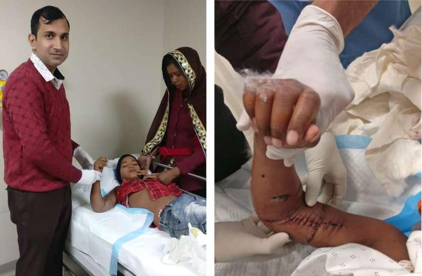 जयपुर के डॉक्टरों का कमाल, 12 वर्षीय मासूम के कटे हाथ को जोड़ा