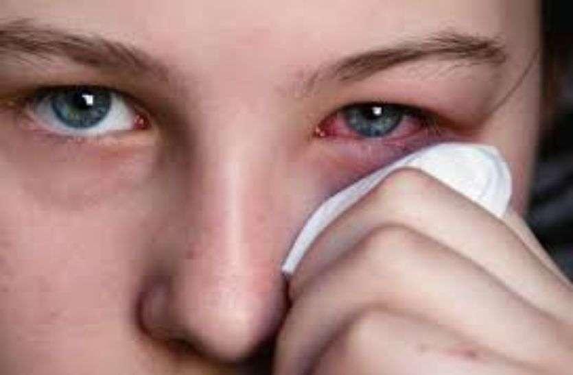 आंख चिपकना व पानी आना विंटर आई फ्लू के लक्षण