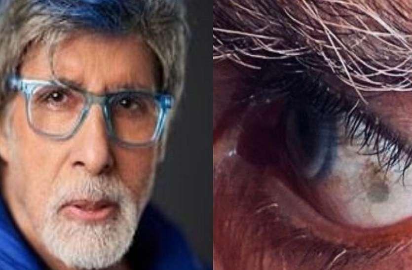 Mumbai Hindi News : अमिताभ के ट्वीट ने प्रशंसकों को चिंता में डाला, बाईं आंख फड़कने का क्या मतलब!