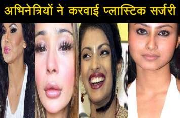 इन अभिनेत्रियों ने प्लास्टिक सर्जरी करवाकर बिगाड़ा चेहरा, देखें वीडियो