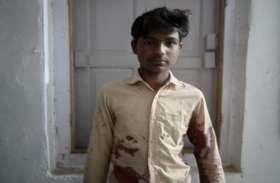 सरकारी स्कूल के छात्र ने सहपाठी पर किया चाकू से वार