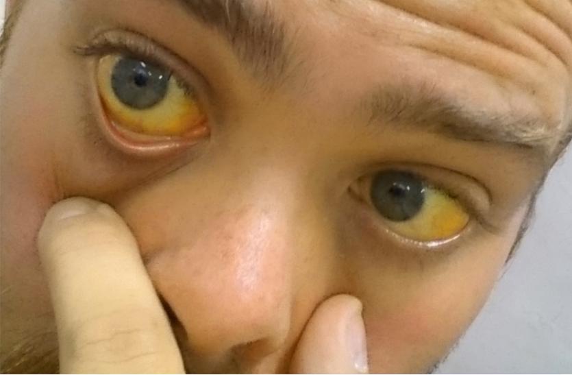 पीलिया के मरीजों की संख्या 49 पहुंची, महामारी का डर