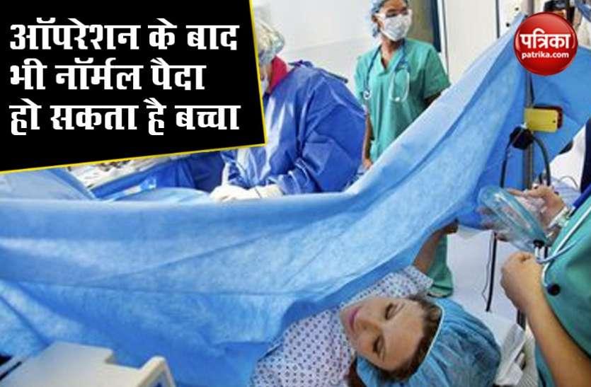 डिलीवरी के बारे में महिलाओं के नहीं पता है ये बात, ऑपरेशन के बाद भी नॉर्मल पैदा हो सकता है बच्चा