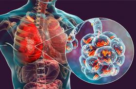 चीन ने जनवरी में विश्व स्वास्थ्य संगठन को दी थी निमोनिया संक्रमण की जानकारी
