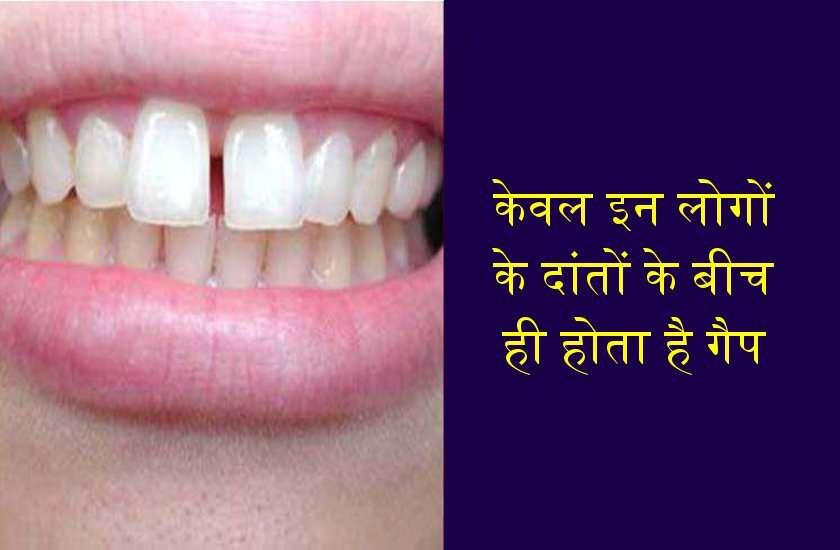 दांत बता देते हैं आपकी लाईफ स्टाइल कैसी है या भविष्य में कैसी होगी