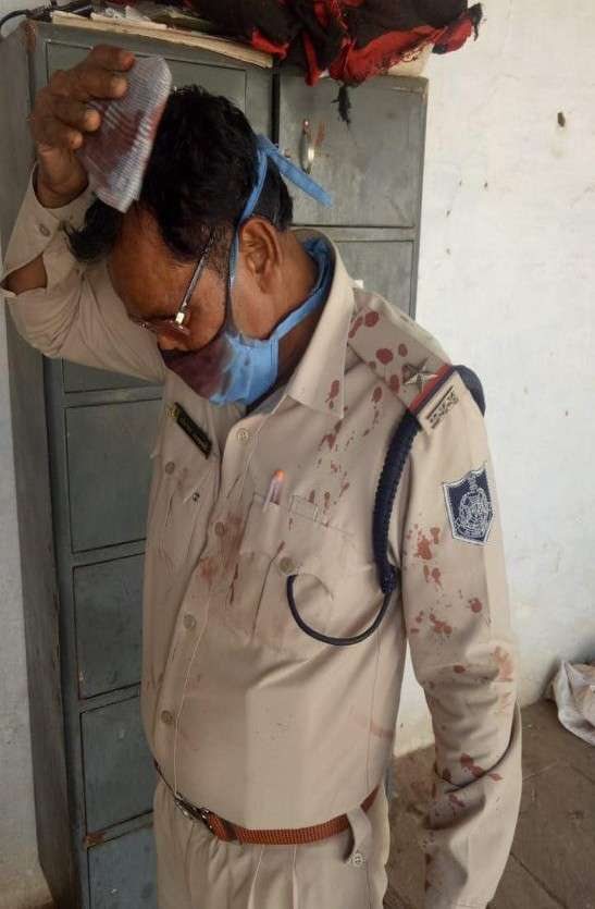injured doctor-police in mp, home minister spoke to asi and doctor