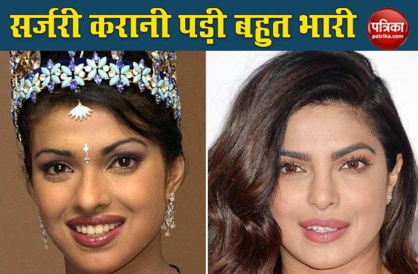 होंठ और नाक की सर्जरी कराने के लिए Priyanka Chopra को चुकानी पड़ी बड़ी कीमत, कई फिल्मों को कहना पड़ा 'Bye'