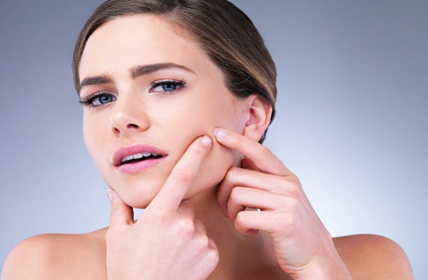 Skin care Tips: पिंपल्स से जल्द छुटकारा चाहते हैं तो आजमाएं ये घरेलू नुस्खे
