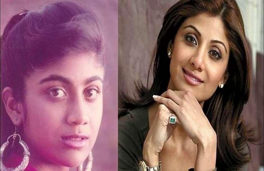 Shilpa Nose Surgery