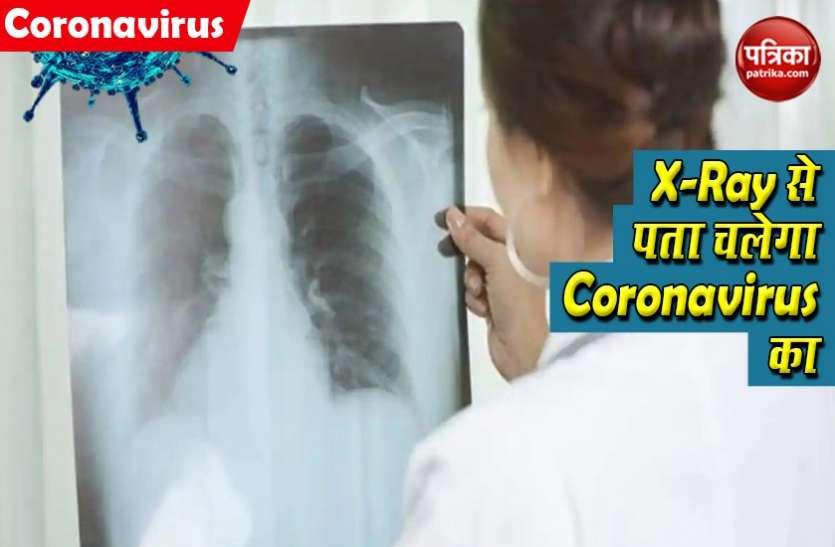 छाती के X-Ray से लगाया जाएगा Coronavirus का पता, रिसर्च में किया गया अनोखा दावा