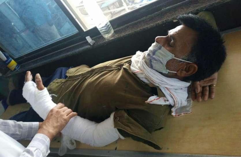 पुलिस की पिटाई से टूटा मानसिक दिव्यांग का हाथ, एसपी ने किया लाइन अटैच