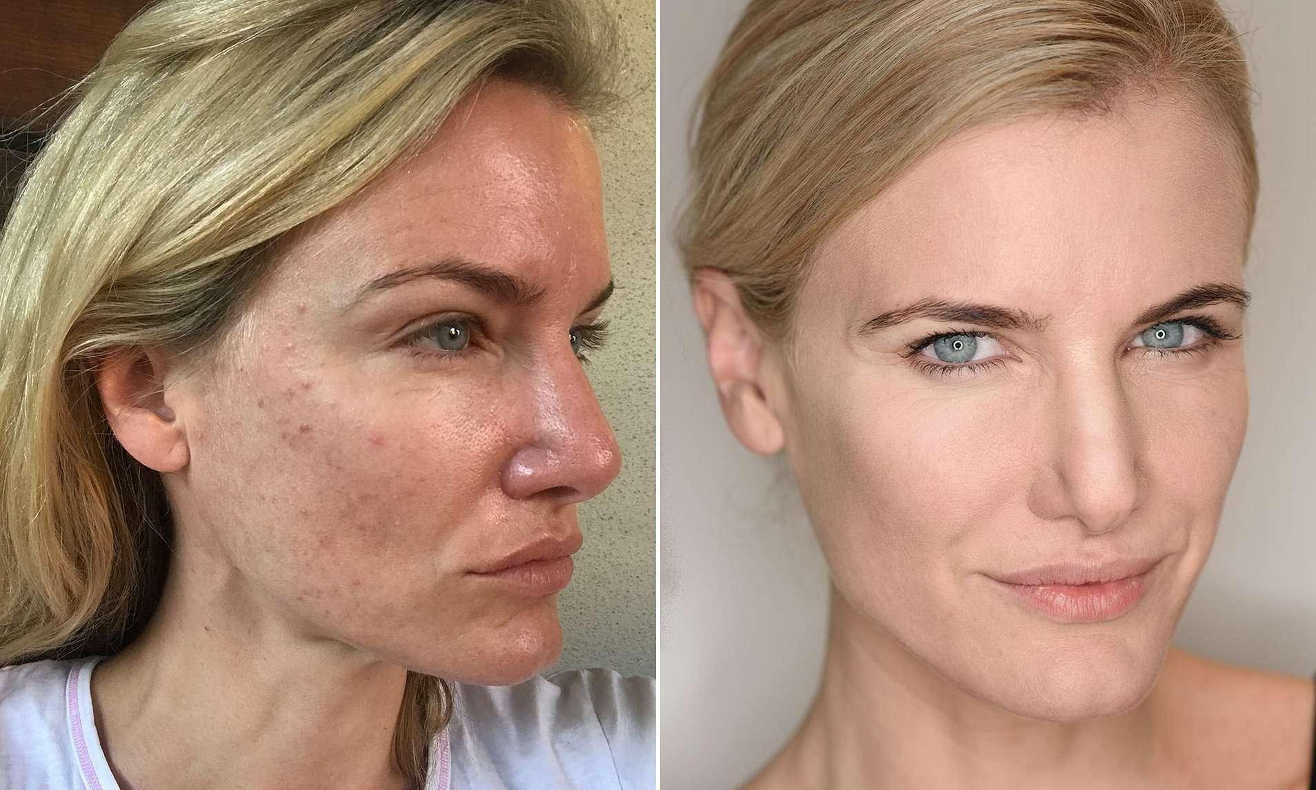 त्वचा की 'सेहत' बनाए रखने के लिए बढ़ रहा है 'स्किन फास्टिंग' का ट्रेंड