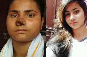 मां ने पकड़ा और छोटी बहन ने बड़ी बहन की नाक काट दी