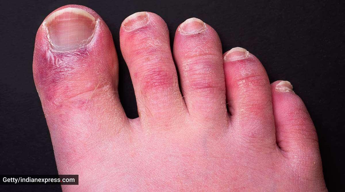 कोरोना का नया लक्षण- पैर में दिखें नीले अथवा लाल रंग के निशान तो सावधान, हो सकता है 'कोविड-टो'