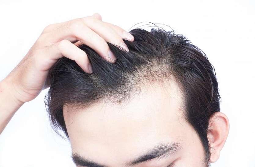 HAIRFALL PROBLEM  : बारिश के दिनों में बालों को झड़ने से कैसे रोकें?