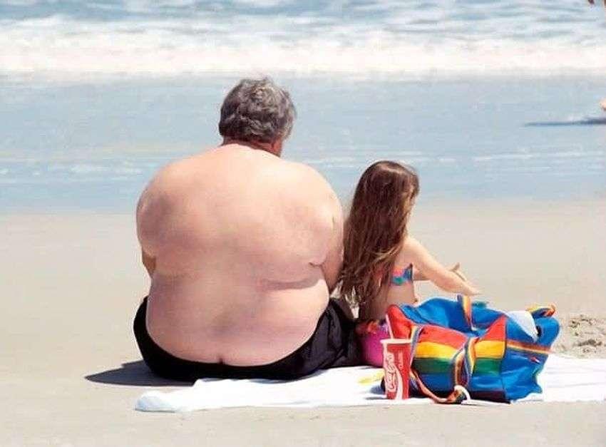 सेहत जिंदगी: मोटापे के कारण दिमाग सिकुड़ने लगता है और दिमाग में रक्त प्रवाह कम होने पर अल्जाइमर का खतरा बढ़ जाता है