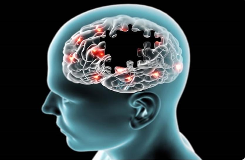 अल्जाइमर के बारे में जानें, क्या हैं लक्षण और कारण