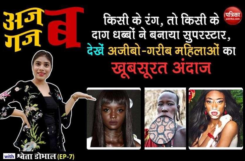 किसी के रंग, तो किसी के दाग धब्बों ने बनाया सुपरस्टार, देखें अजीबो-गरीब महिलाओं का खूबसूरत अंदाज: अजब गजब with Shweta Dhobhal (EP-7)