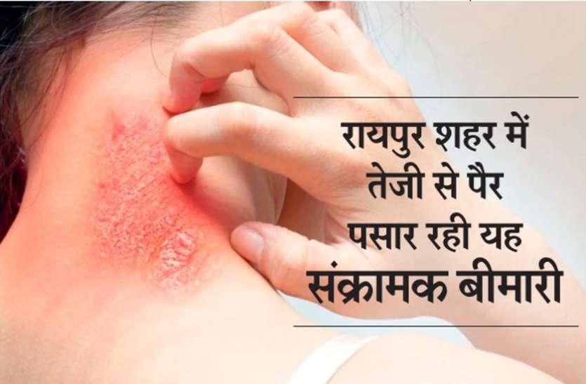 रायपुर शहर में तेजी से फैल रही खुजली, हजारों लोग संक्रमण से हो रहे शिकार